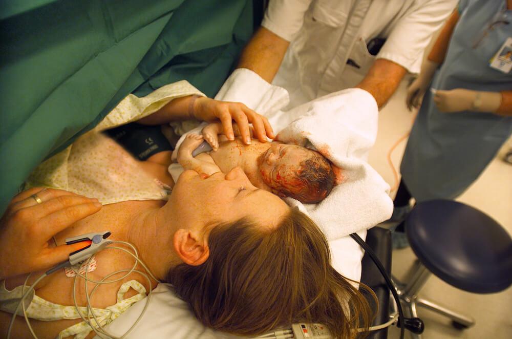 Geburt: Tipps für einen Kaiserschnitt